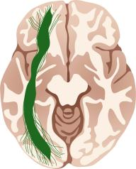 IFOF_pathway_brain_slice3-13Mar19