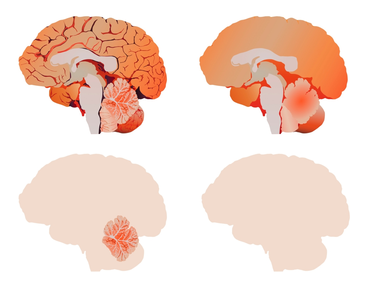 anatomical_brains-15Nov19
